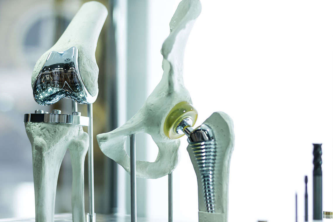 DePuy Knee Replacement Lawsuits Hero Image