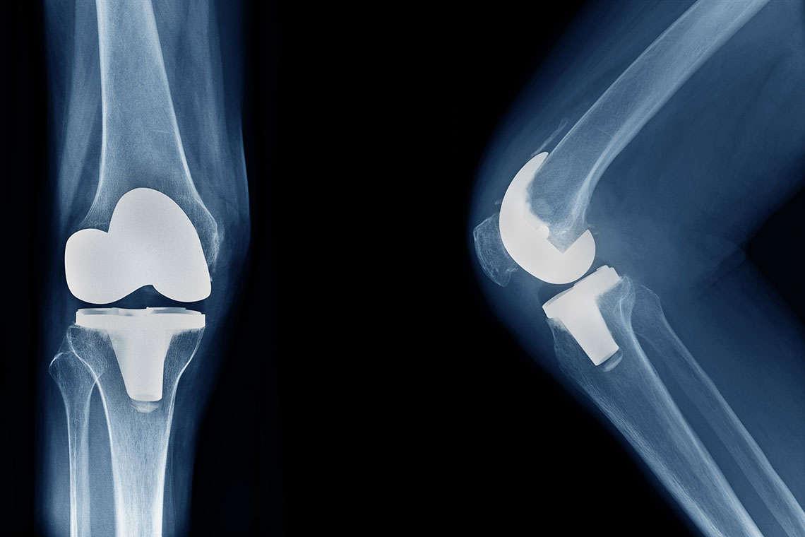 Zimmer Knee Replacement Hero Image