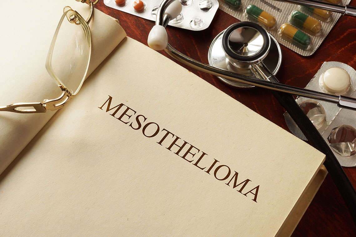 What is Mesothelioma and How Did I Get it? Hero Image