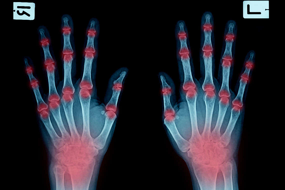 Actemra Arthritis Drug Lawsuit Hero Image