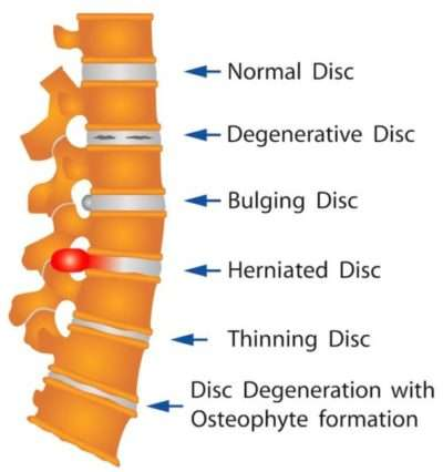 herniated-disc-infographic